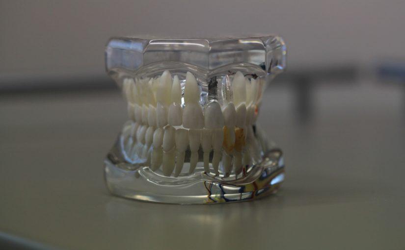 Zły sposób żywienia się to większe niedostatki w zębach natomiast również ich brak